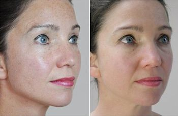 needling full face pigmentation